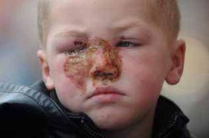 Numa festa familiar um menino de 3 anos ficou queimado
